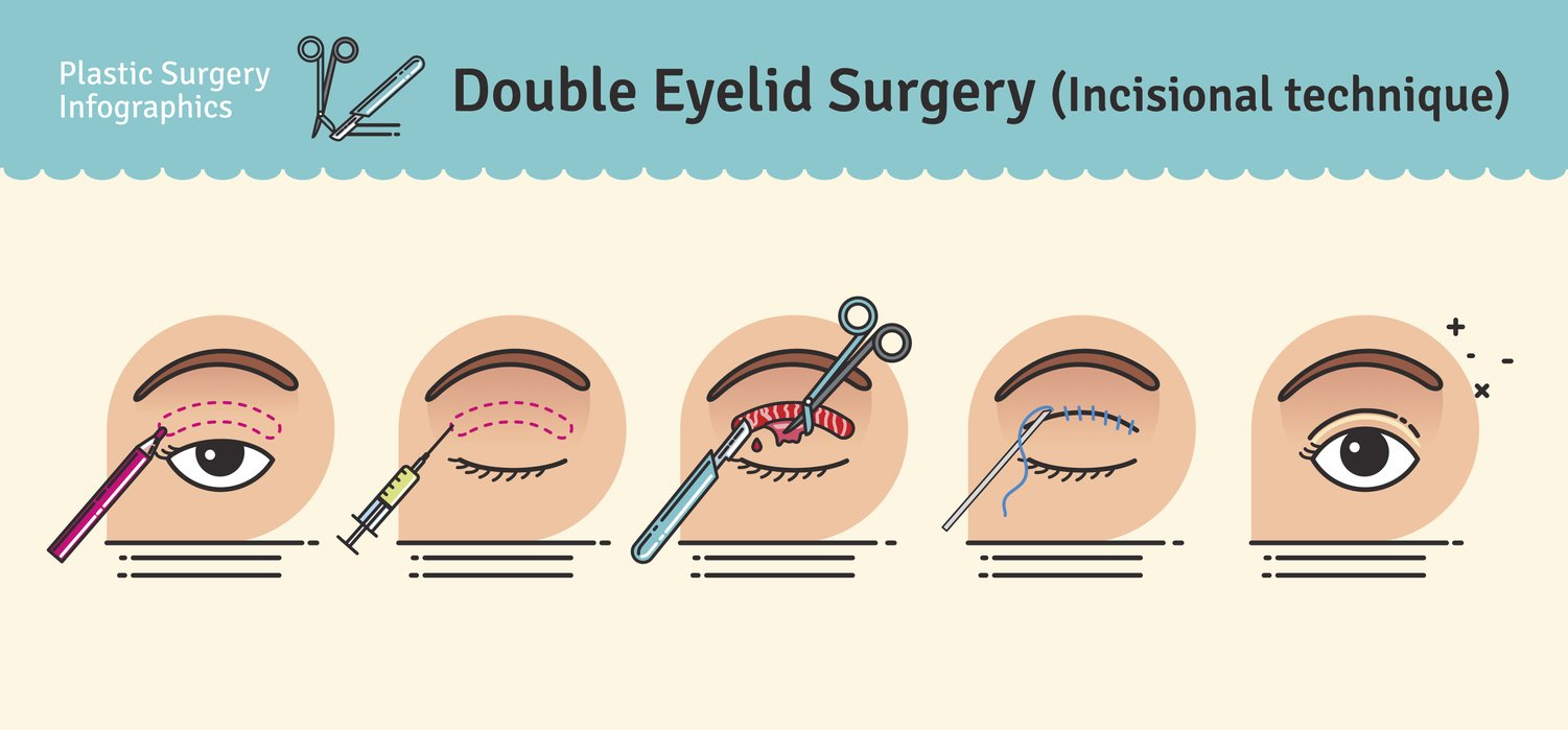 double eyelid surgery illustration