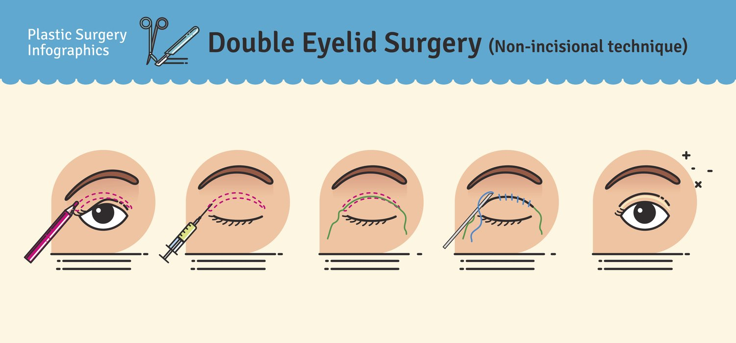 double eyelid surgery non incisional illustration