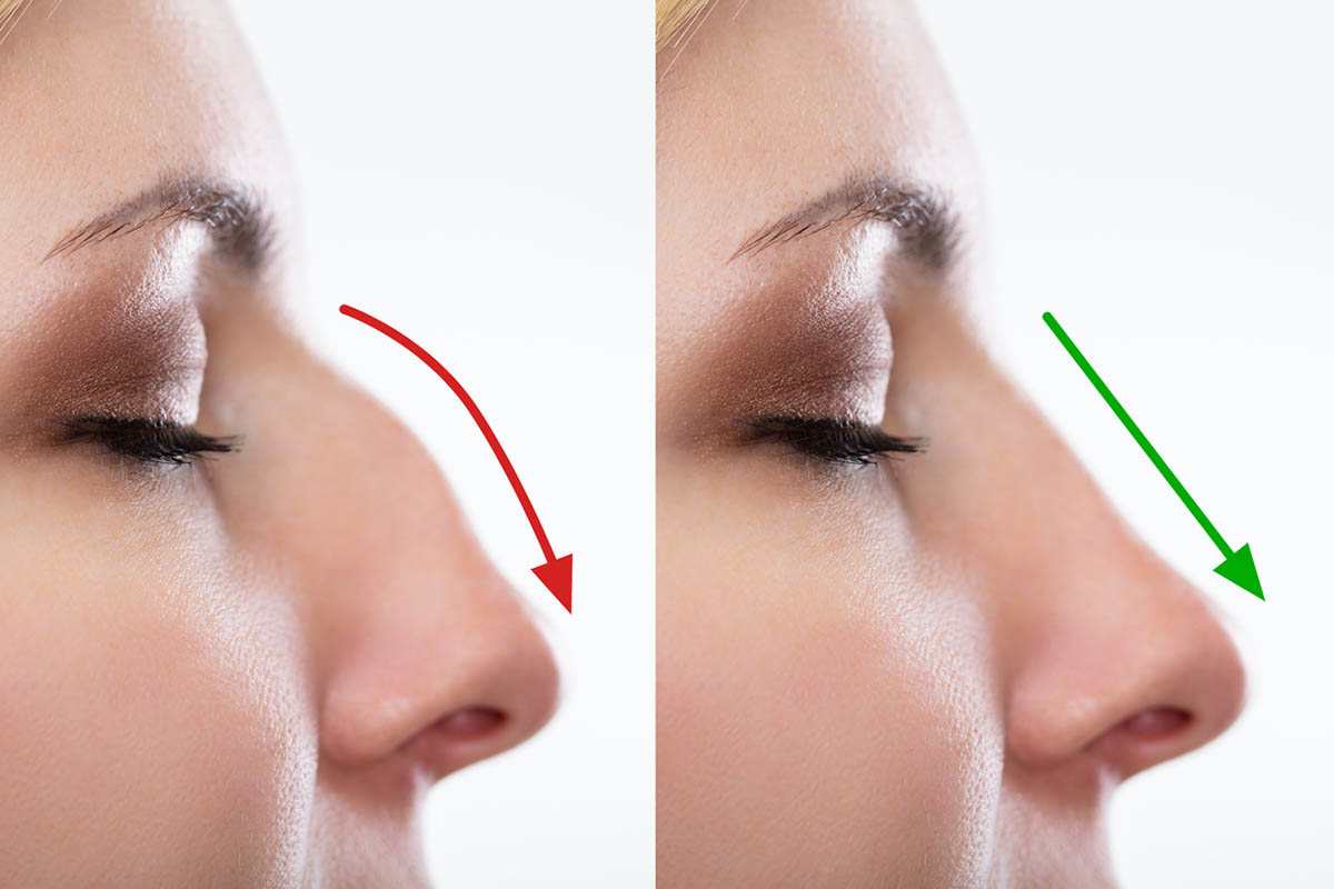 rhinoplasty result photo