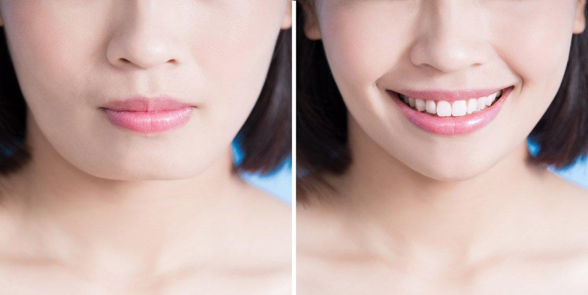 close up of chin surgery woman