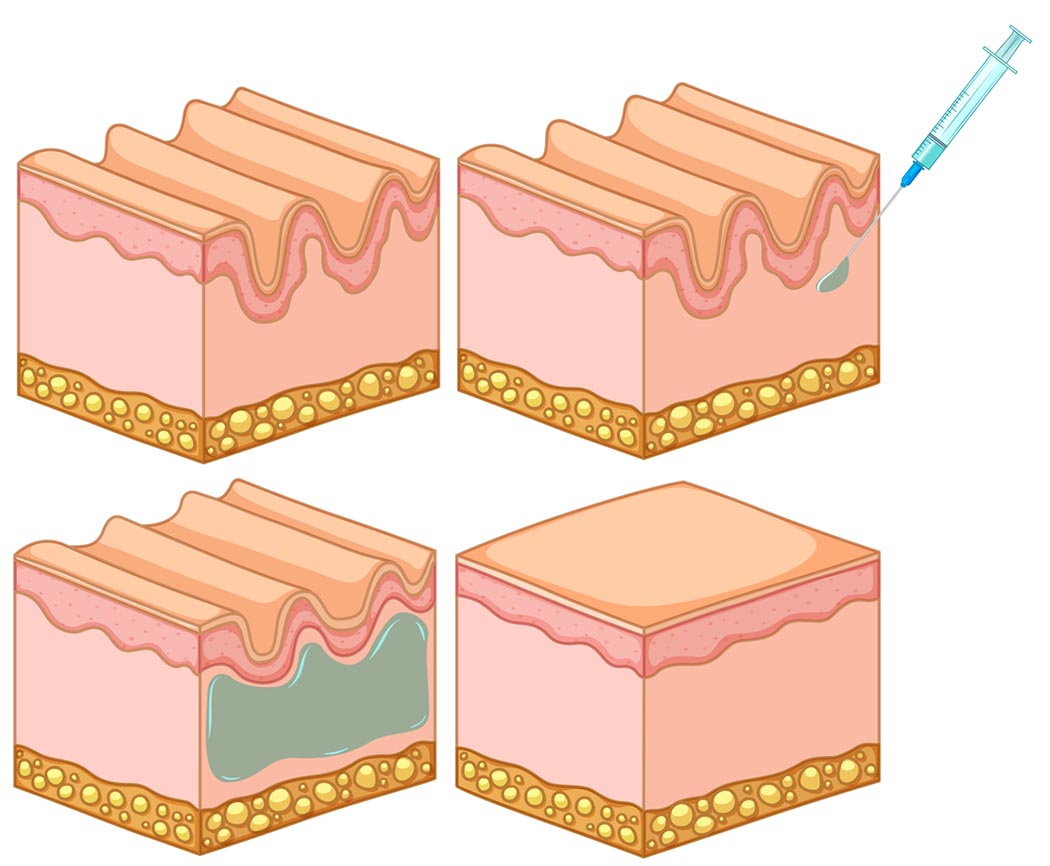 Botox filler skin injection illustration
